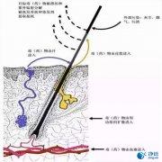 毛发毒品检测仪检测毛发的优势及步骤详